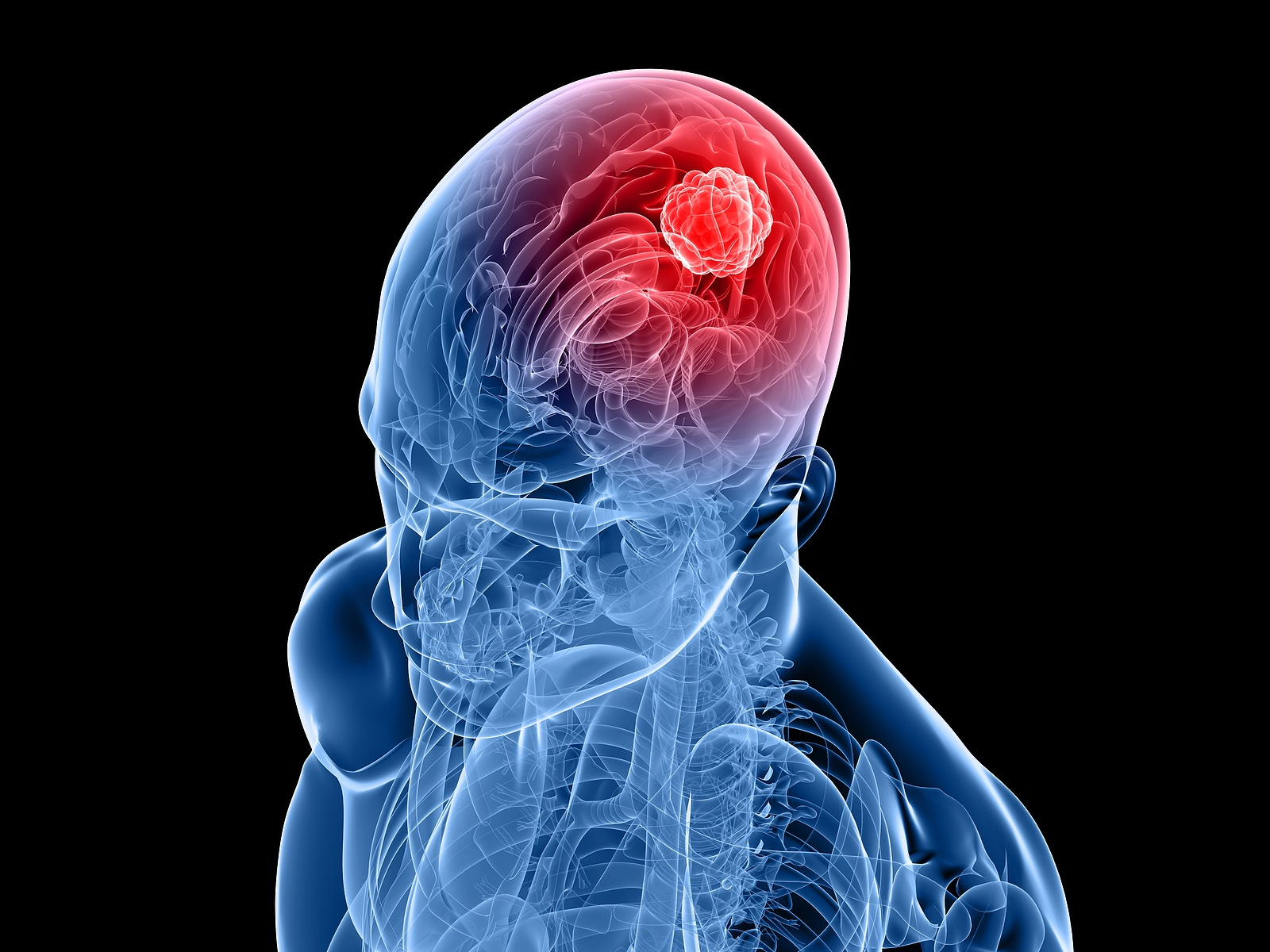 Cancer 101: Malignant brain tumors